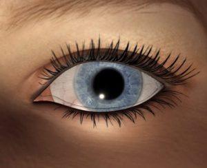 eye test can diagnose schizophrenia