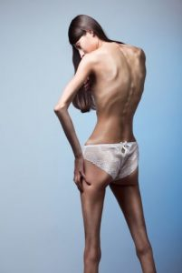 eating disorder, what causes eating disorders