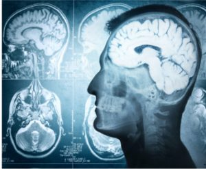 brain matter changes from severe concussion